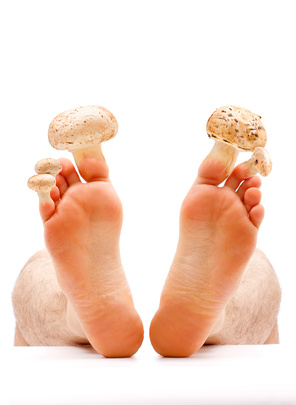 do podiatrists treat nail fungus?